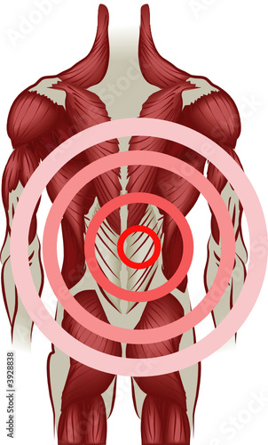 Back pain Muscles of the back radiating pain