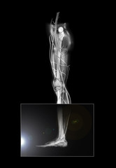 Leg and Ankle X-ray