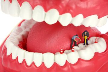 Miniature workers drilling teeth