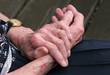 Sceriosis Skin Disease