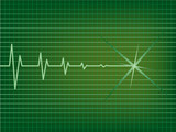 Heart is slowing down on EKG monitor poster