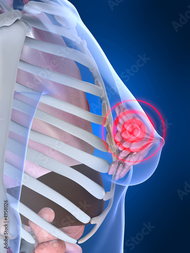 poster of painful breast