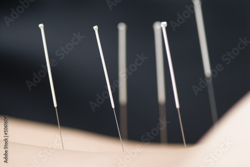 Treatment by acupuncture