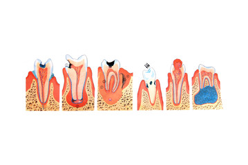 teeth illustration