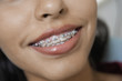 Teenage Girl 14-16 wearing teeth braces, close-up