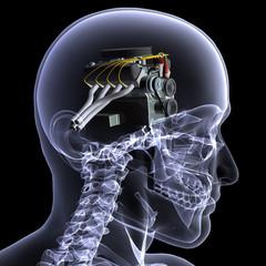 Skeleton X-Ray - Motorhead 1