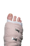 A broken foot wrapped up in a temporary bandage. poster