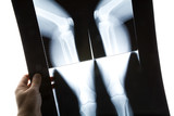 knee x-ray photo poster