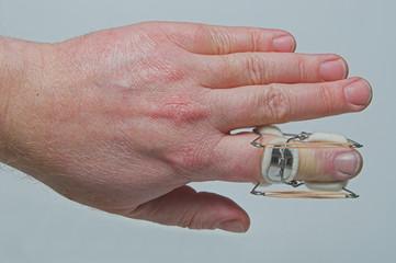 A brace to hold a broken finger.