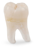 wisdom tooth poster