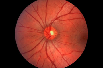 Retina - Optic Nerve - Human Eye