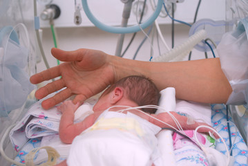 Hand of the physician and newborn in incubator