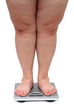 women legs with overweight poster