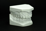 Gypsum model plaster of tooth - Side view