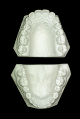 Gypsum model plaster of tooth - Upper View