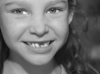 Smiling Girl with Missing Front Tooth