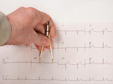 Doctor Measuring EKG Intervals With Calipers
