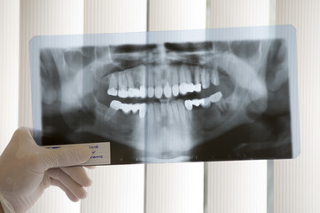 X-ray Teeth Diagnostics