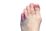 Bruises, bunions  and broken toes poster
