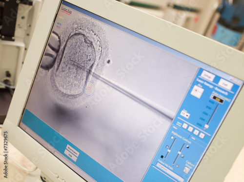 Monitor showing intra cytoplasmic sperm injection