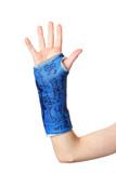 Broken Arm poster