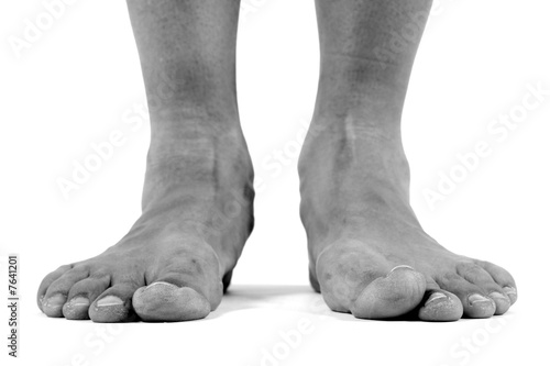 Fallen arches, flat feet