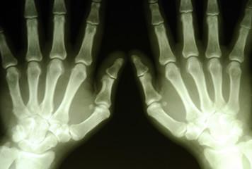 hand roentgenogram
