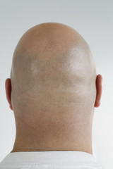 Rear view of a bald headed man.