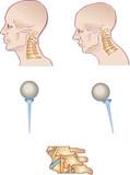 neck spine poster