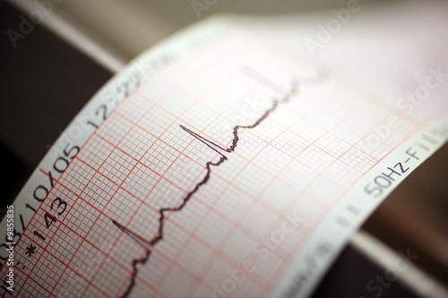 echokardiografie - 9855835