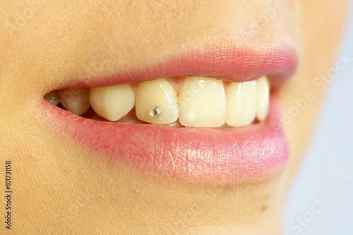 Пирсинги для зубов