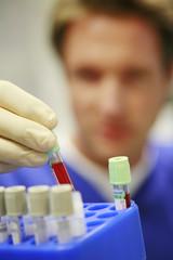 mediziner untersucht blutprobe im labor