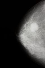 X-ray - mammography. Cancer - Mamary tumor.