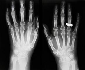 Osteoporosis, osteoarthrosis IV;