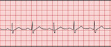 Normal electronic cardiogram vector illustration poster
