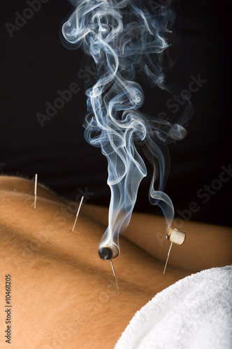 Patient receiving acupuncture treatment to his back
