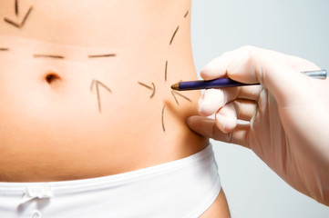 Marking abdomen for cosmetic correction surgery