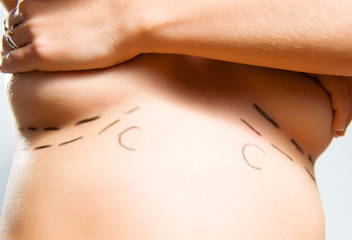 Marks under breasts for cosmetic surgery