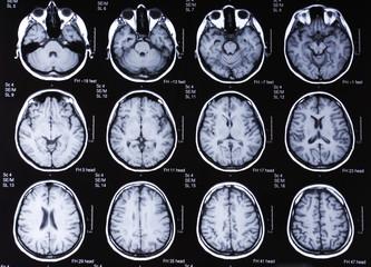 tomography brain