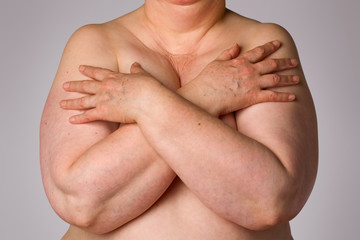 Overweight woman covering breasts