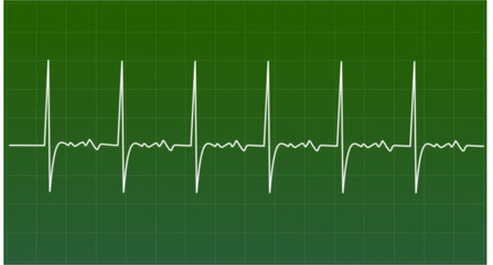 Real Heart Signals