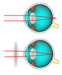 Longsighted eye corrected with a convex lens