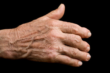 Old hand with arthritis