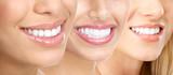 Woman teeth - 12743697