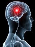 kopfschmerz / migräneanfall / schlaganfall