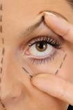 woman before a facial surgery correction