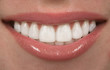 Teeth - 13845821