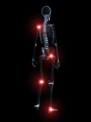 skelett mit markierten gelenken