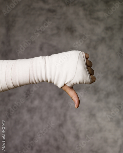 Thumbs down from injured hand
