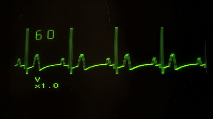 EKG defibrillator heart flatlines with audio - HD